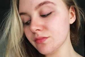 How I finally cleared my stubborn acne